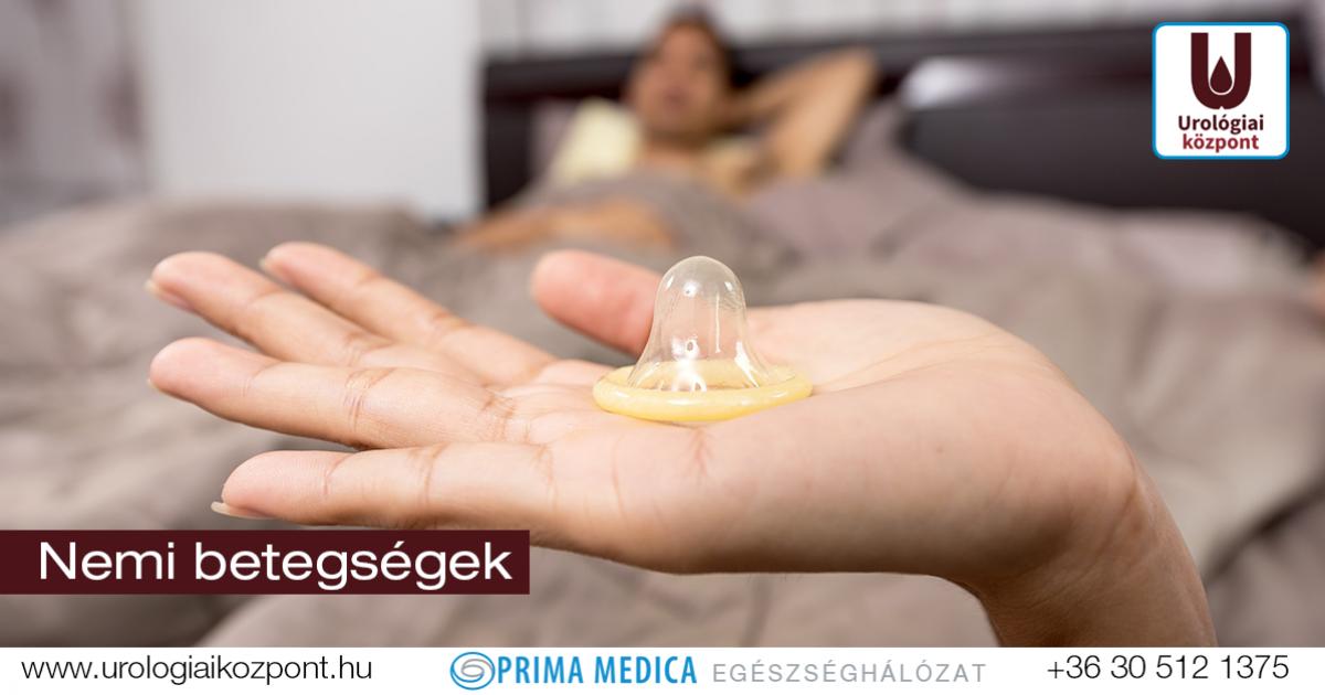A fej és a fityma gyulladásának kezelése - Húgycsőgyulladás