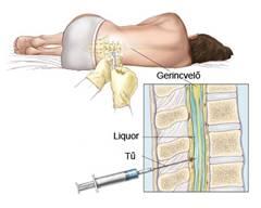 erekció gerinc sérülés mit kell tenni a merevedés felemeléséhez