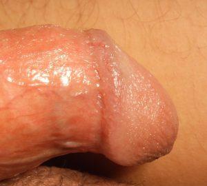 csúnya pénisz