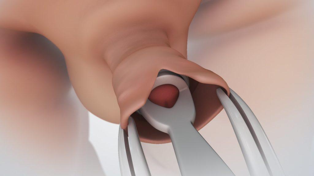 erekció a körülmetélés után