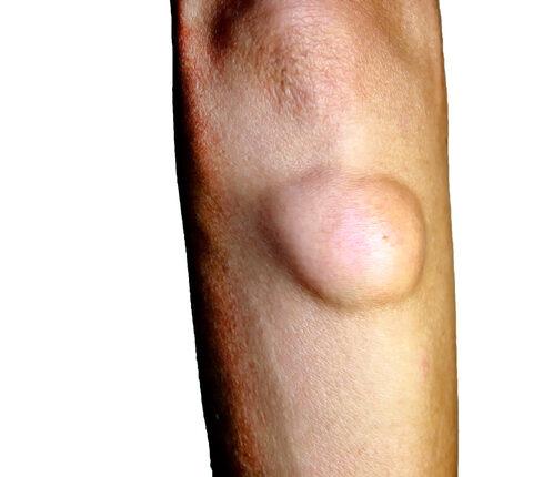 Péniszen zsírmirigy? - Bőrbetegségek