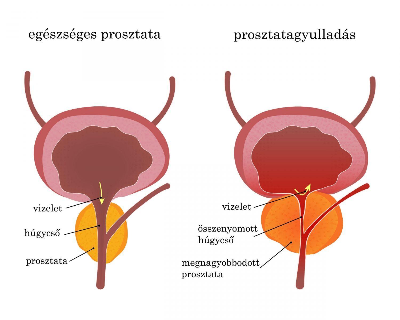 a krónikus prosztatagyulladás rontotta az erekciót