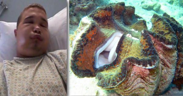 Kórházi kezelésre szorult, miután becsípte péniszét az óriáskagyló