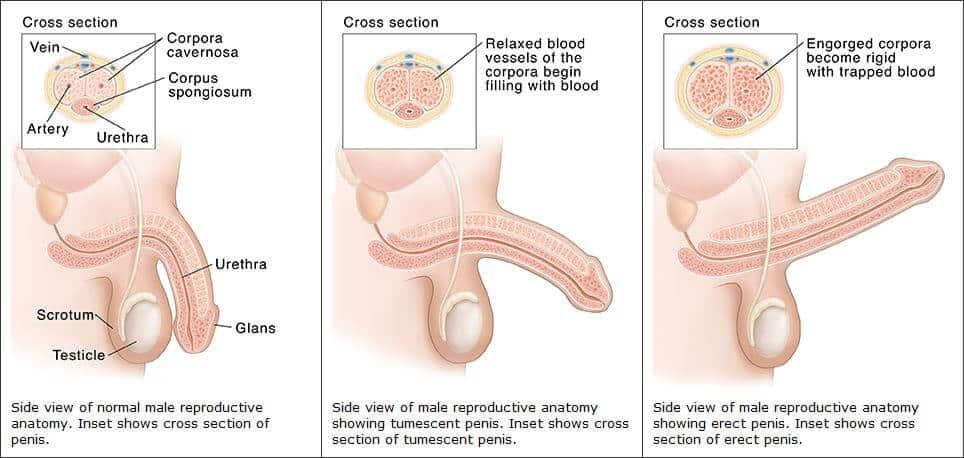 merevedési vérrel különböző méretű péniszek