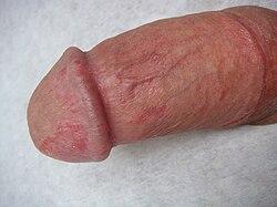 női pénisz szerkezete a hüvelyi pénisz egyenesen puha marad