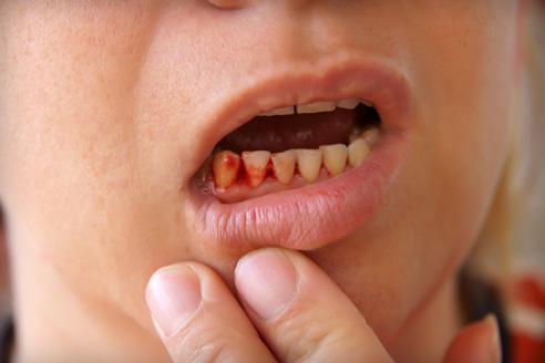 merevedés a szájban