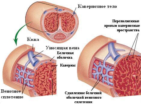 romlott az erekció a prosztatagyulladás kezelése után