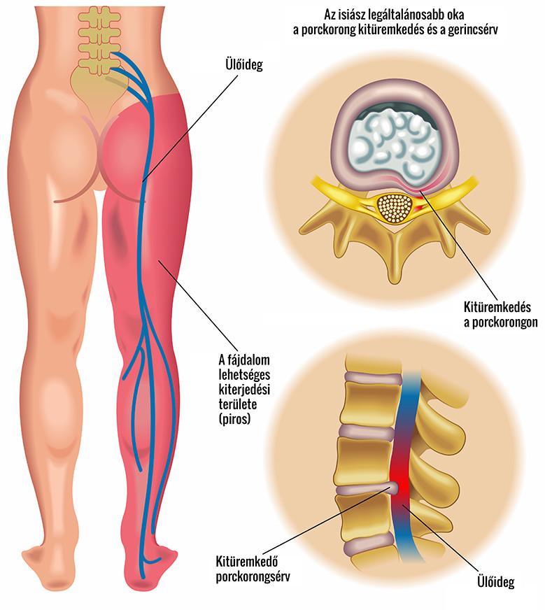 a gerinc hatása az erekcióra