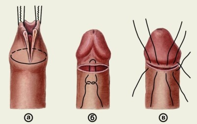 phimosis erekció