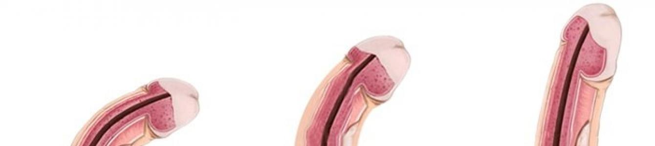 pénisz normális és felálló állapotban