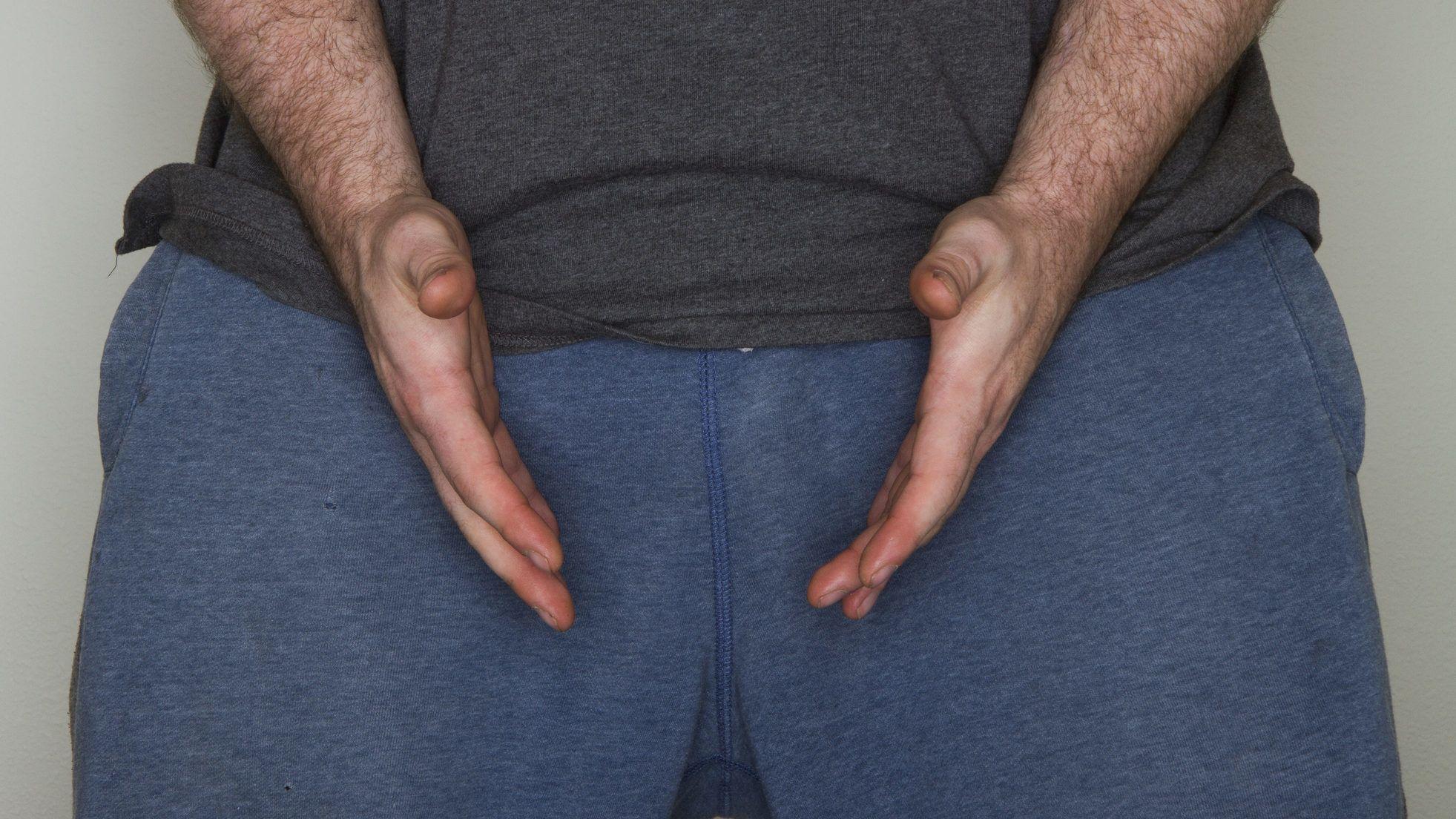 keményítő pénisz masszázs és erekció