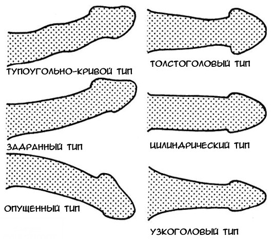 szokatlan alakú pénisz)