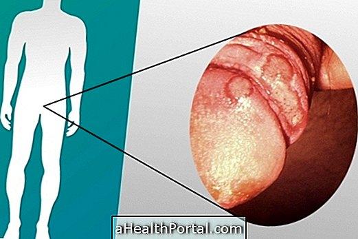 a szifilisz tünetei a péniszen