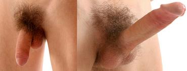 erekció során a pénisz puha)