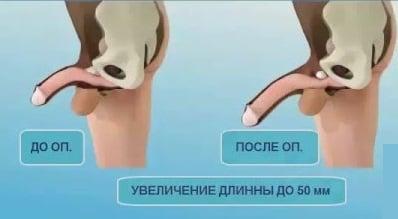 üreges testek a péniszben székrekedés miatt gyenge merevedés