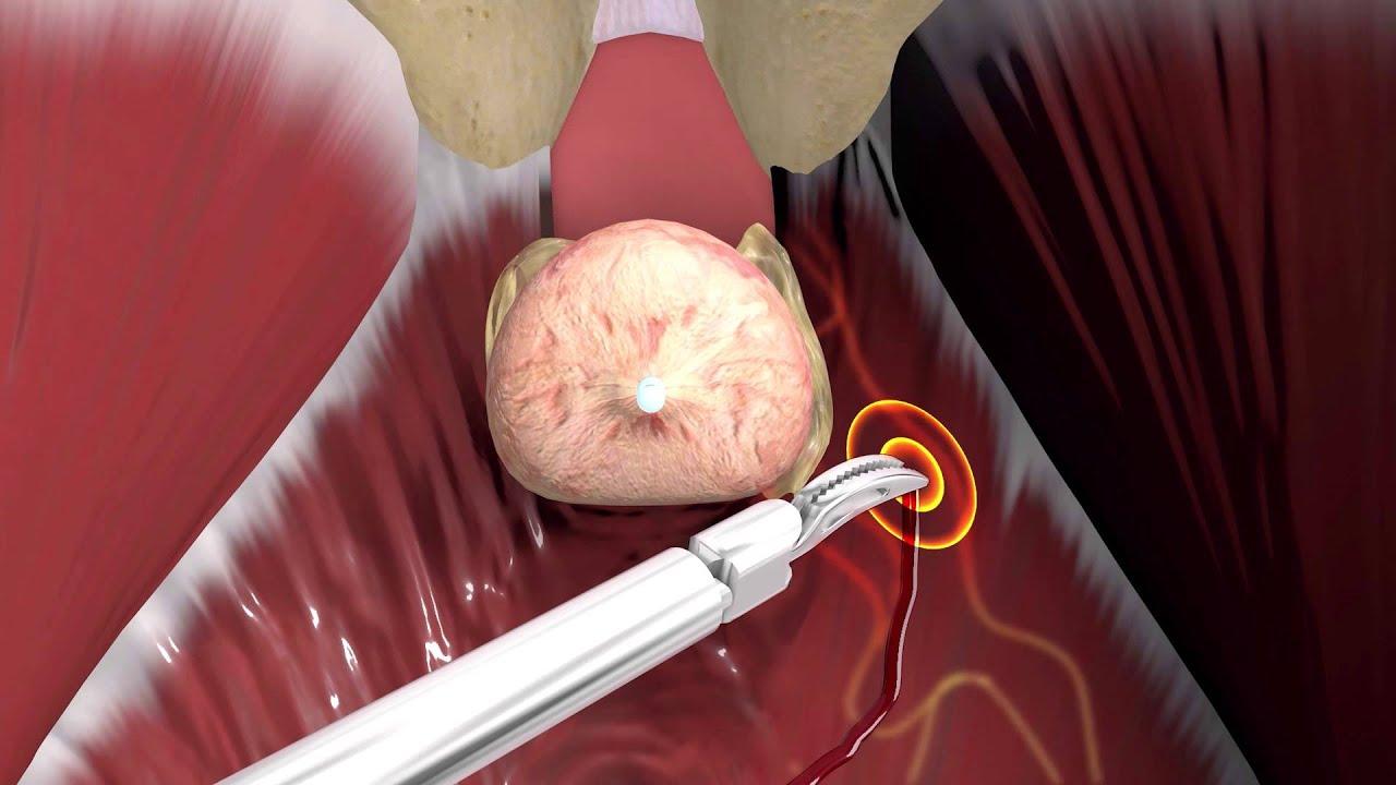 romlott az erekció a prosztatagyulladás kezelése után)