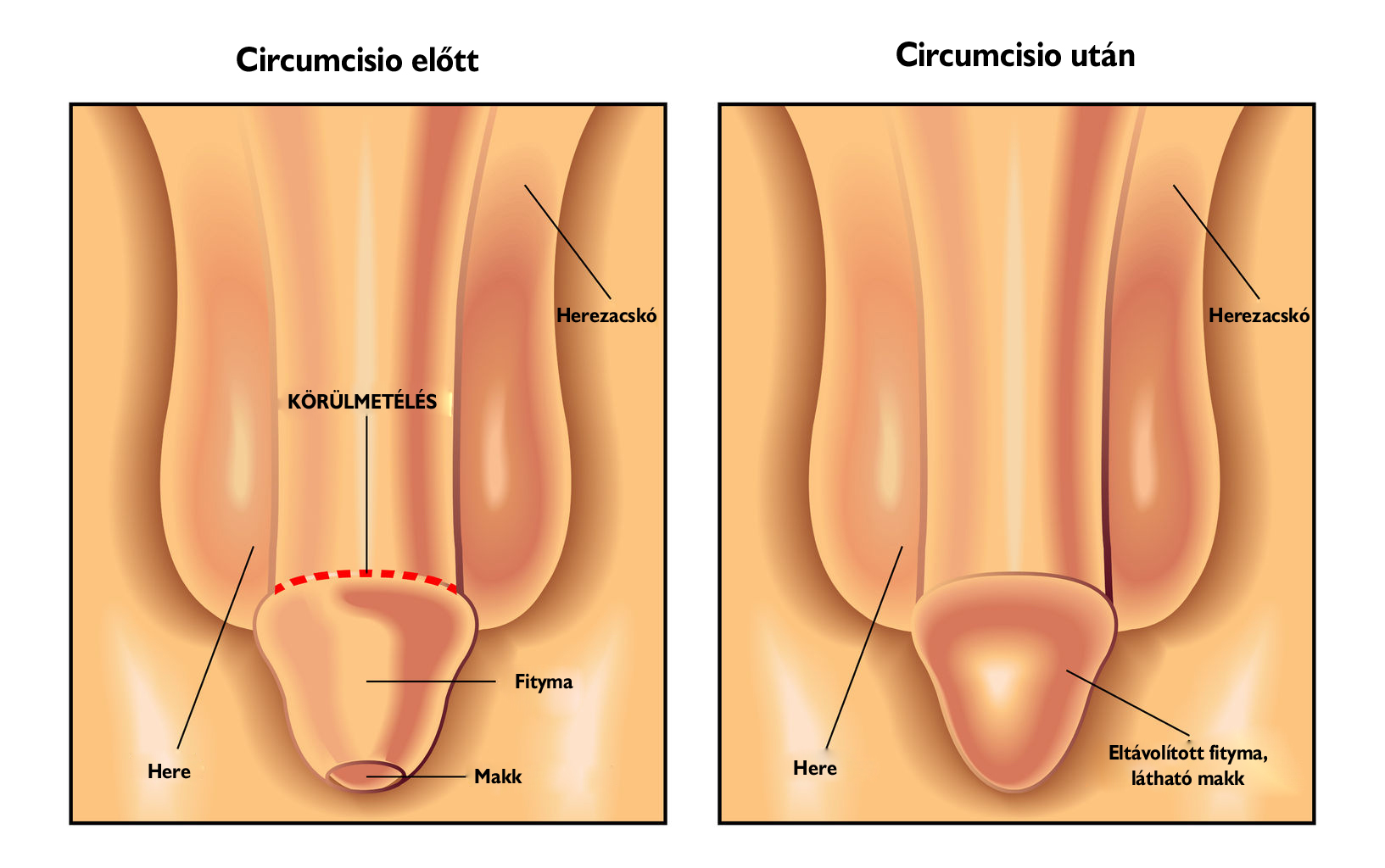 péniszbetegség kezelése)