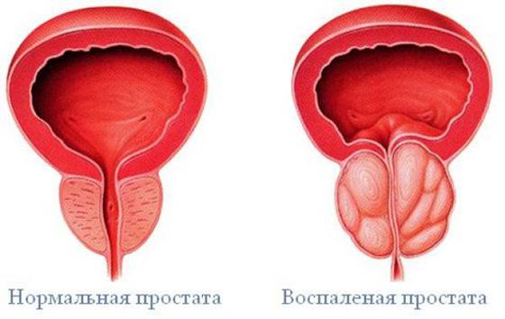 hogyan kezeljük az erekciót krónikus prosztatagyulladás esetén