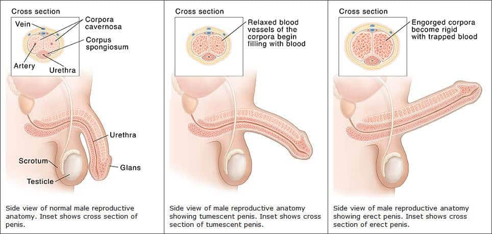 feláll, de puha pénisz befolyásolja az erekciót