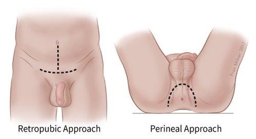adenoma és merevedés hogy jó péniszem legyen