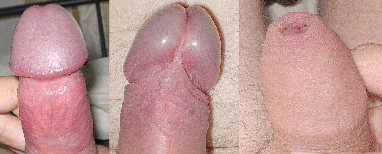 az erekció során a pénisz eltér)