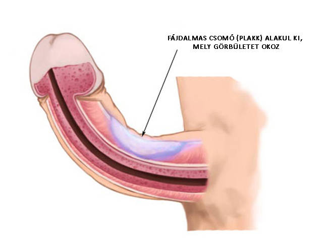 a pénisz görbülete oldalra