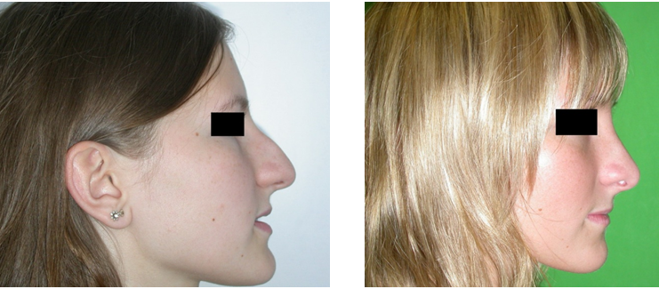 felállítás előtt és után fotó)