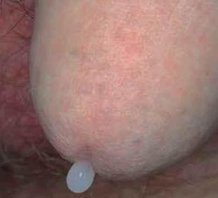 a pénisz betegségeinek tünetei