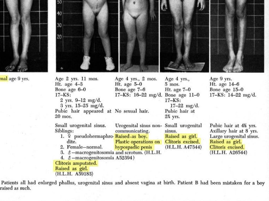 fantáziák a péniszzel melyik a pénisz hosszában vagy szélességében jobb