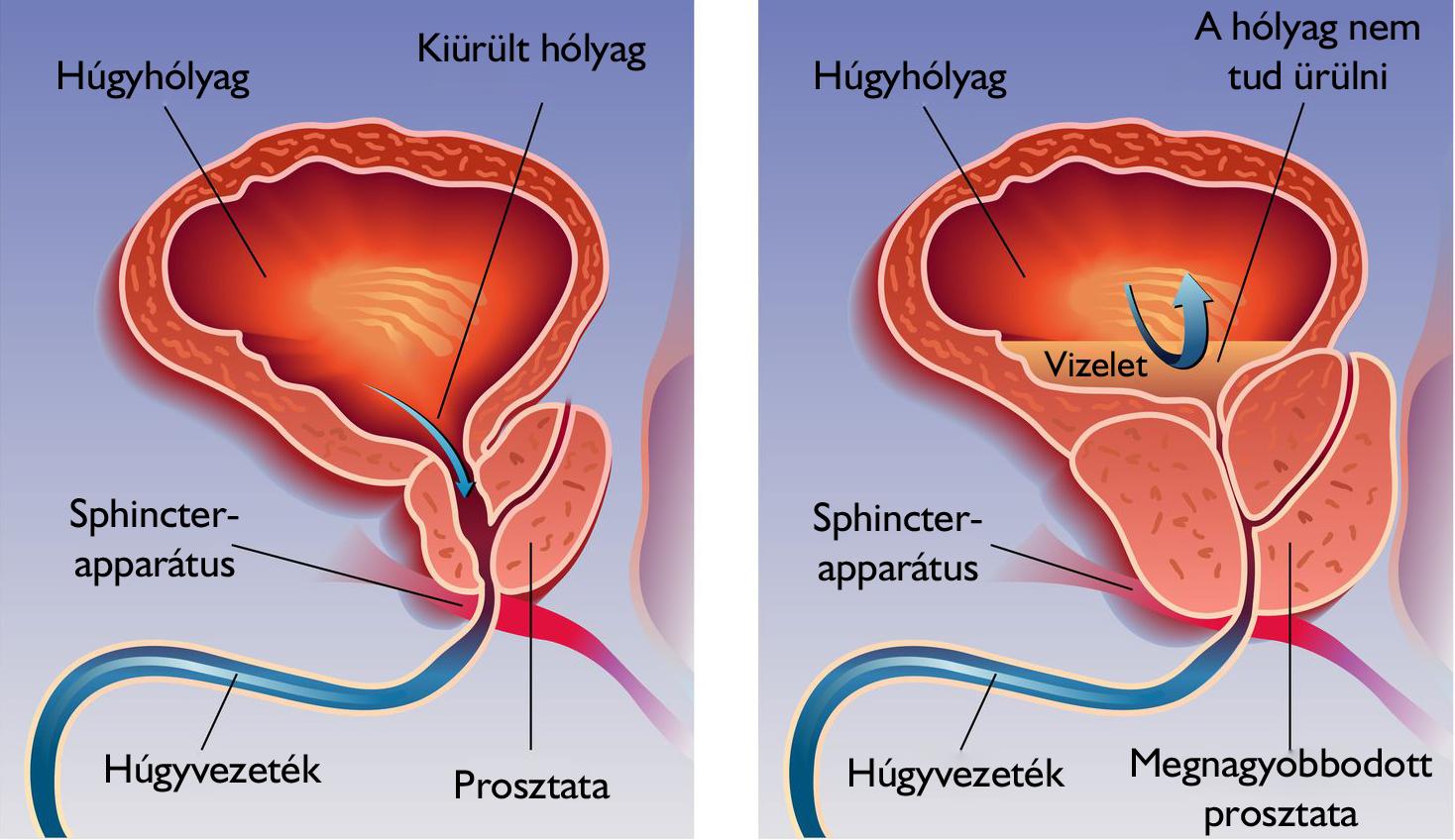 merevedés után a pénisz fáj mitől nő a pénisz