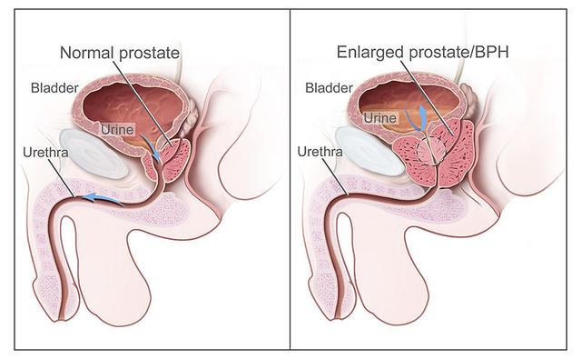 erekció prosztata betegséggel