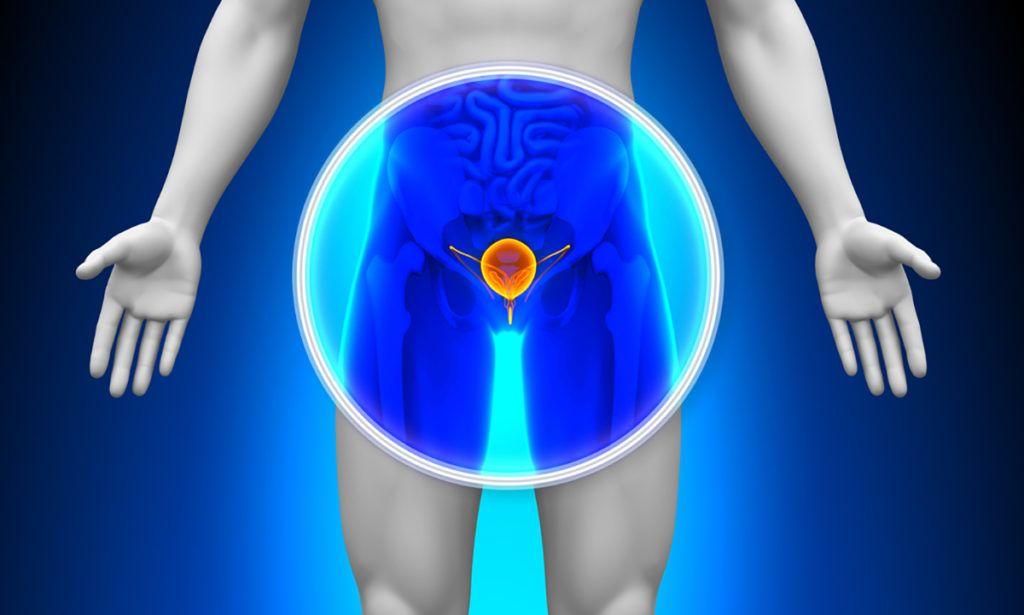 krónikus prosztatagyulladás, amely súlyosbítja az erekciót)