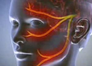 az erekció során a fej nem nyílik ki teljesen)