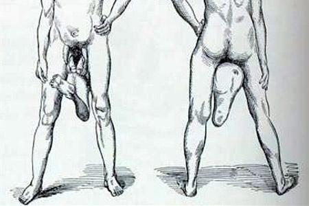 a férfinak nincs egyenes pénisze