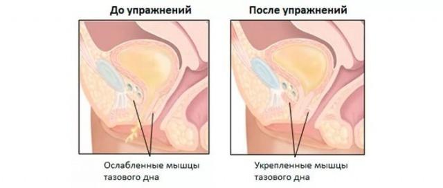 a pénisz letargiája)