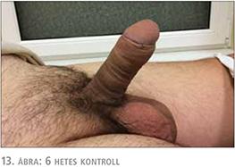 péniszek megbeszélése)
