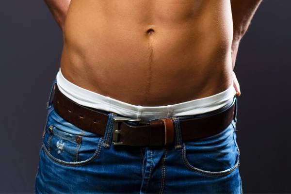 károsítja a hosszú péniszt miért van a férfiaknak egy kis péniszük