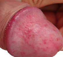 gyógyszeres pénisz kenőcsök